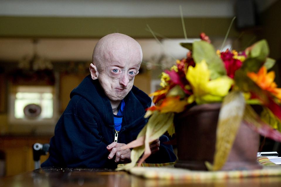 drugshows 9 Надежда на лечение преждевременного старения