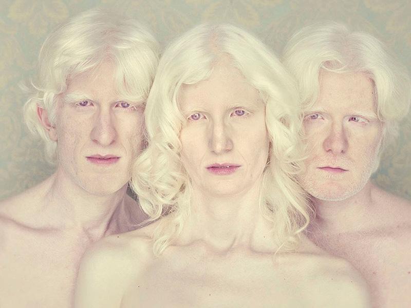 Gustavo lacerda 9 остался с альбиносом