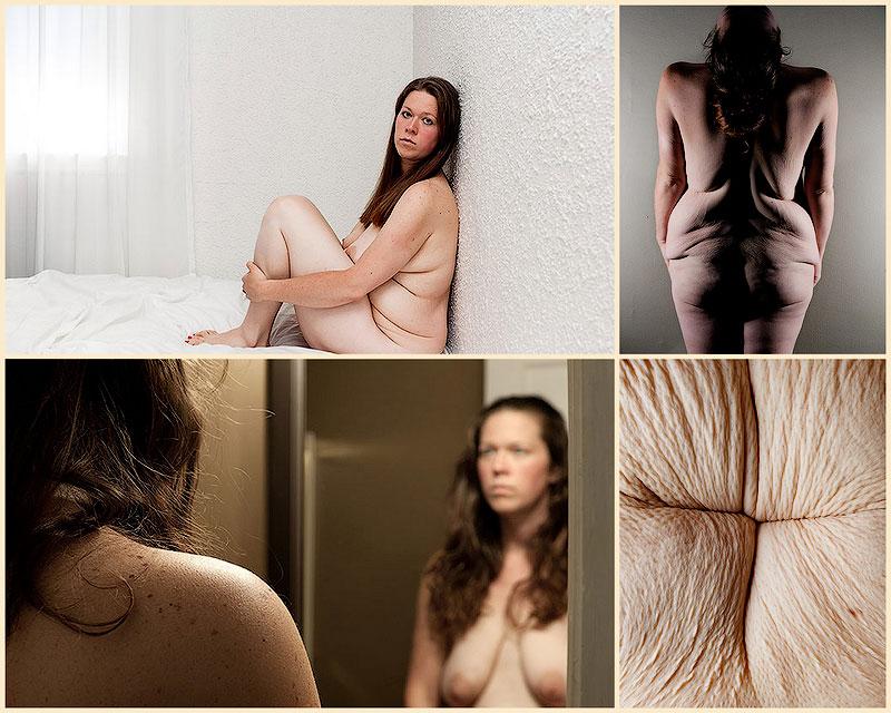 TEMP34 Жизнь после экстремальной потери веса