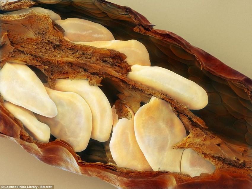 breakfast13 18 удивительных фото продуктов под микроскопом