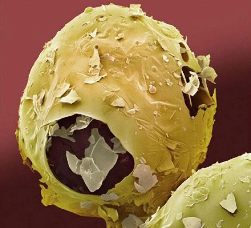 breakfast14 18 удивительных фото продуктов под микроскопом