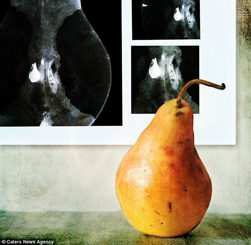 Медосмотр груша в попе, секс видео стройная брюнетка доит чувака