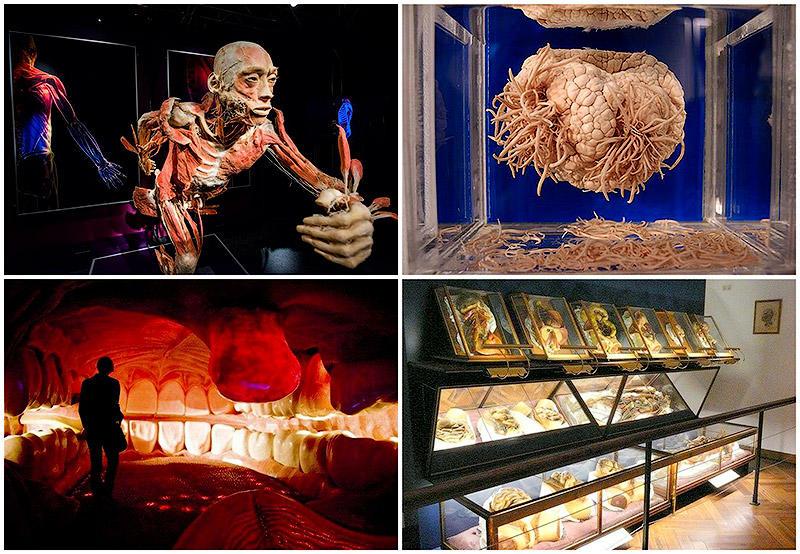 BIGPIC31 6 самых шокирующих анатомических музеев мира
