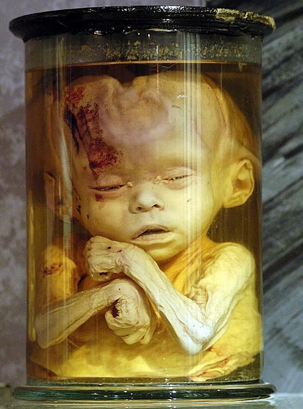 anatomy05 6 самых шокирующих анатомических музеев мира