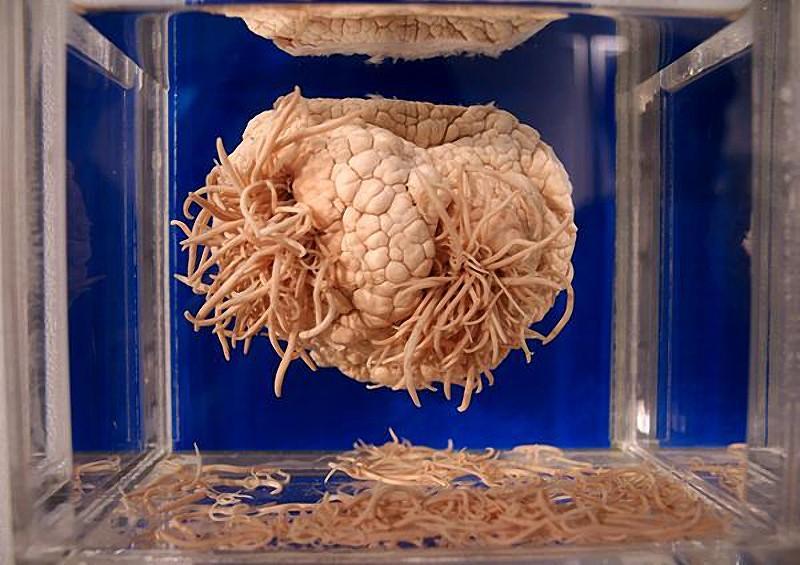 anatomy07 6 самых шокирующих анатомических музеев мира