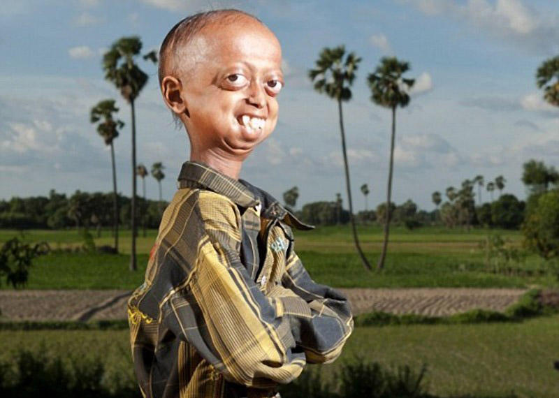 BIGPIC48 Очень редкое заболевание превратило мальчика в пенсионера