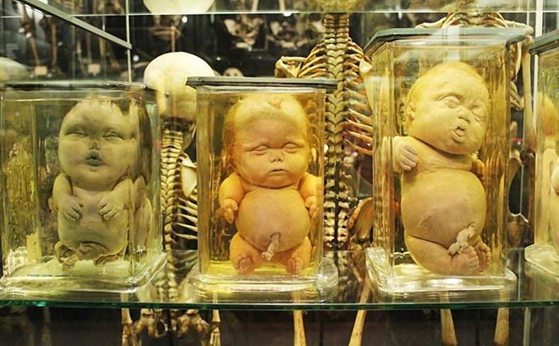 strangemuseums03 Самые необычные музеи Амстердама