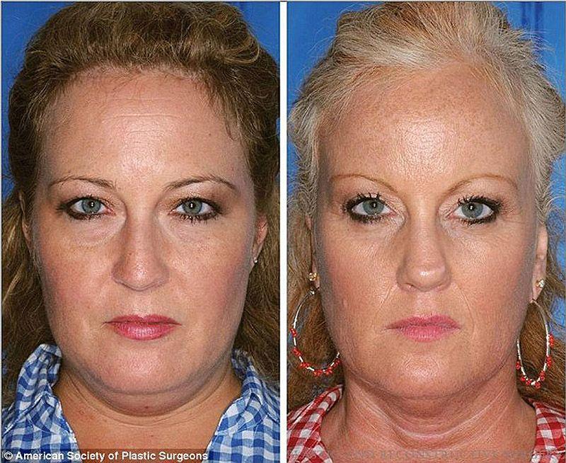 twins01 Эффекты курения на примере близнецов