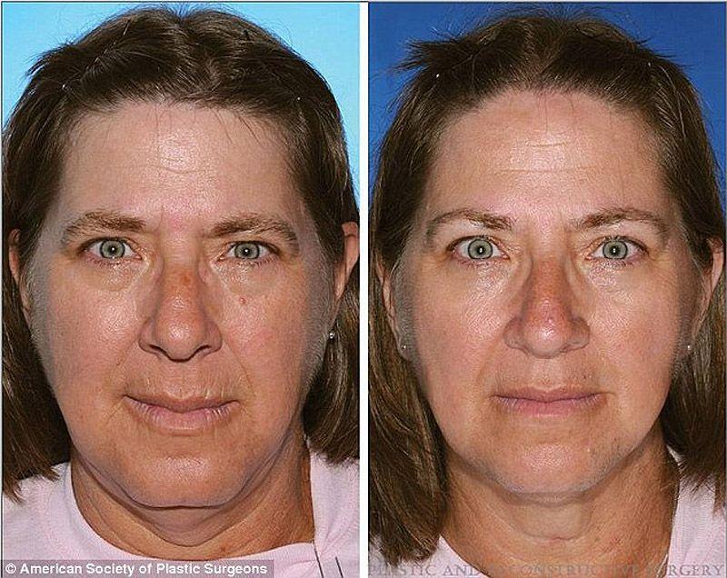 twins02 Эффекты курения на примере близнецов