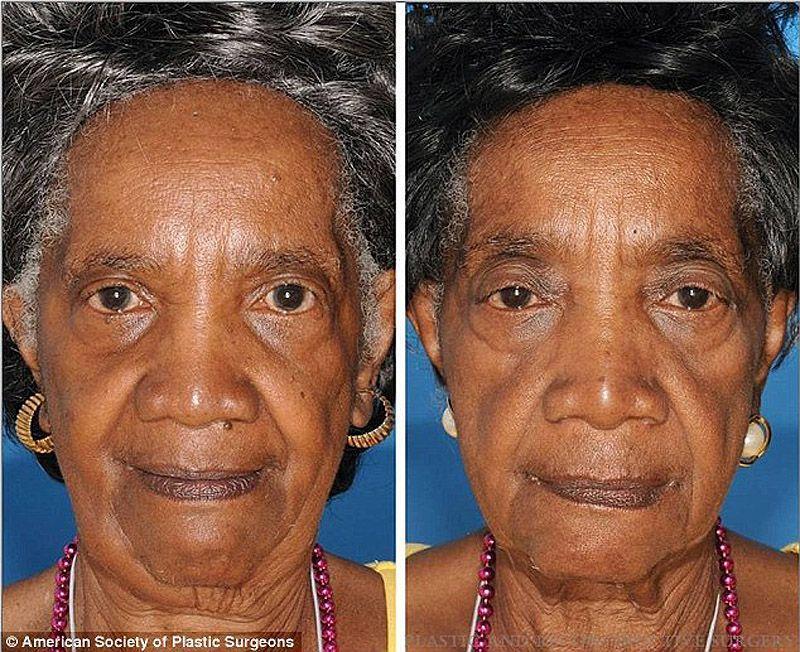 twins04 Эффекты курения на примере близнецов