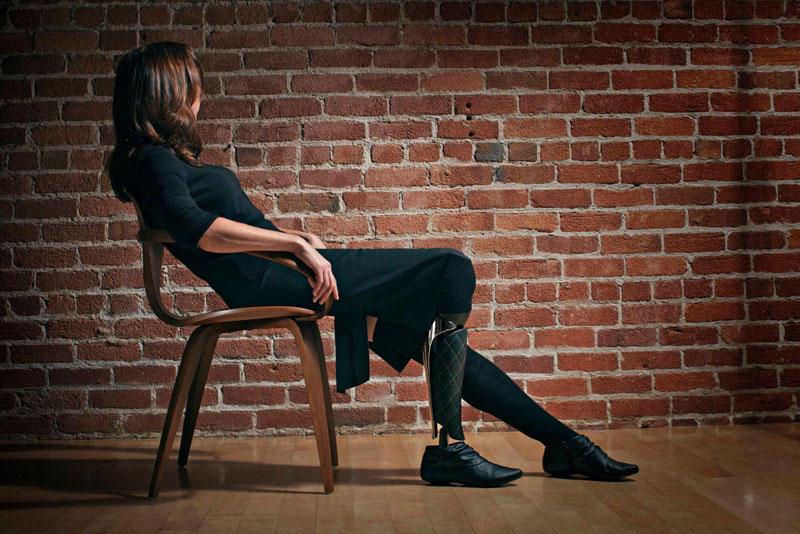 designedprosthetic01 Протезы тоже могут быть элегантными и стильными!
