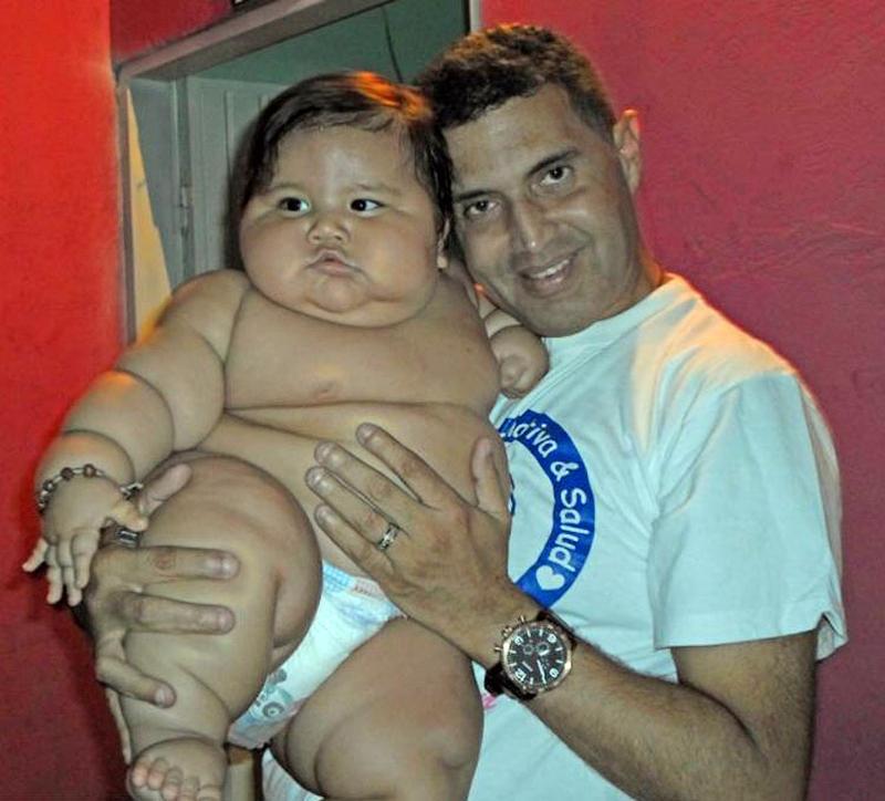 126293363 13952930044921n Ожиревшего 8 месячного малыша изъяли у родителей