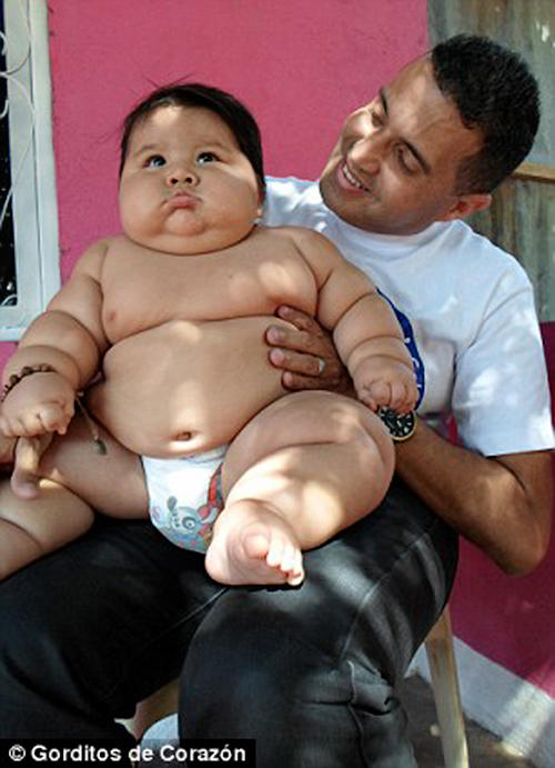 article 2584258 1C6C091100000578 693 306x423 Ожиревшего 8 месячного малыша изъяли у родителей