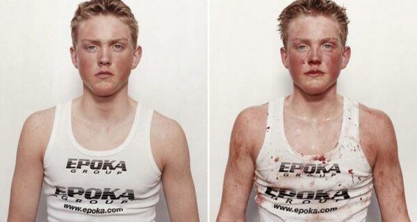 Юные боксеры: до и послебоя