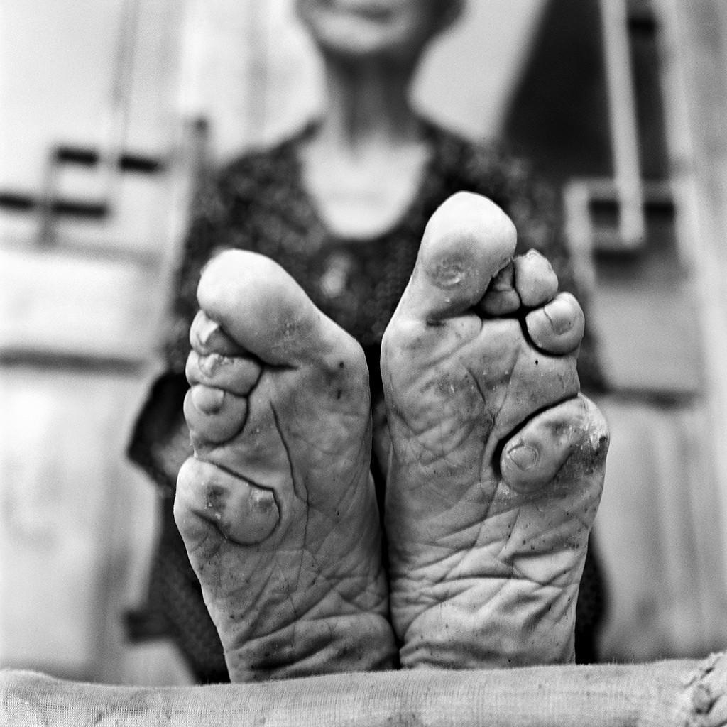 lastfootbinding01 Последние живые китаянки с лотосными ножками