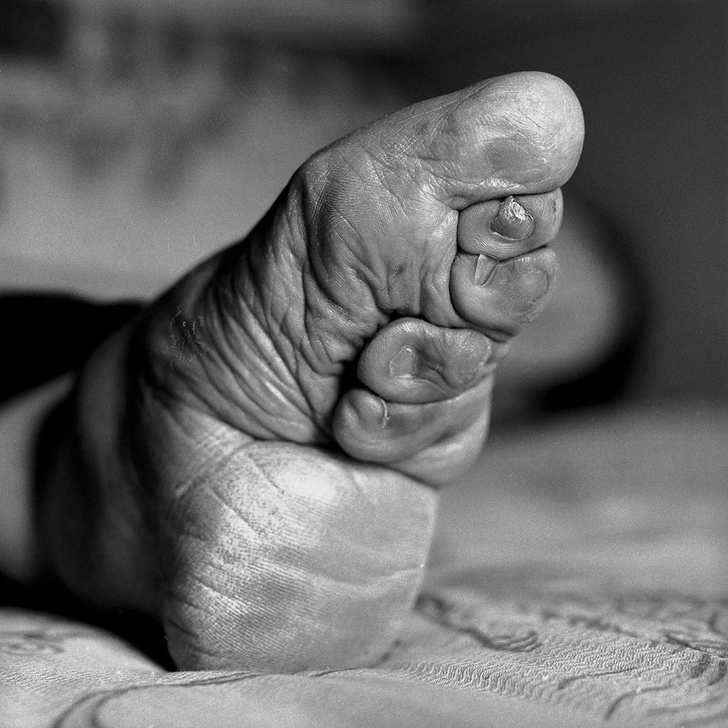 lastfootbinding05 Последние живые китаянки с лотосными ножками