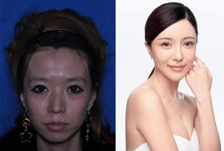 CNplastic02 Стандарты красоты: китаянки после пластики