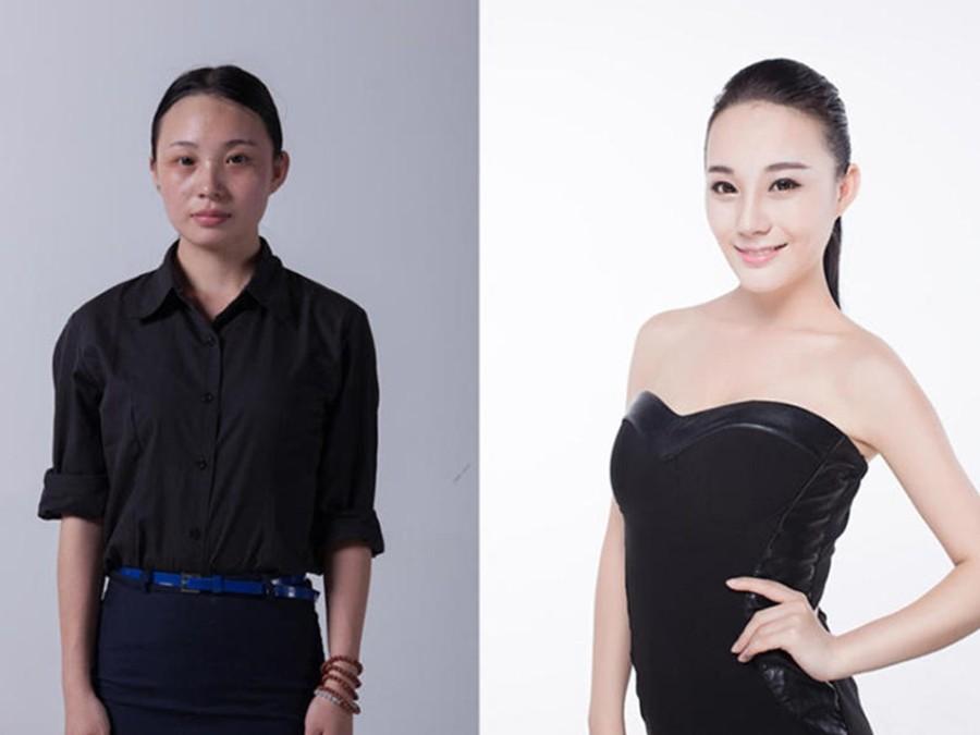 CNplastic04 Стандарты красоты: китаянки после пластики