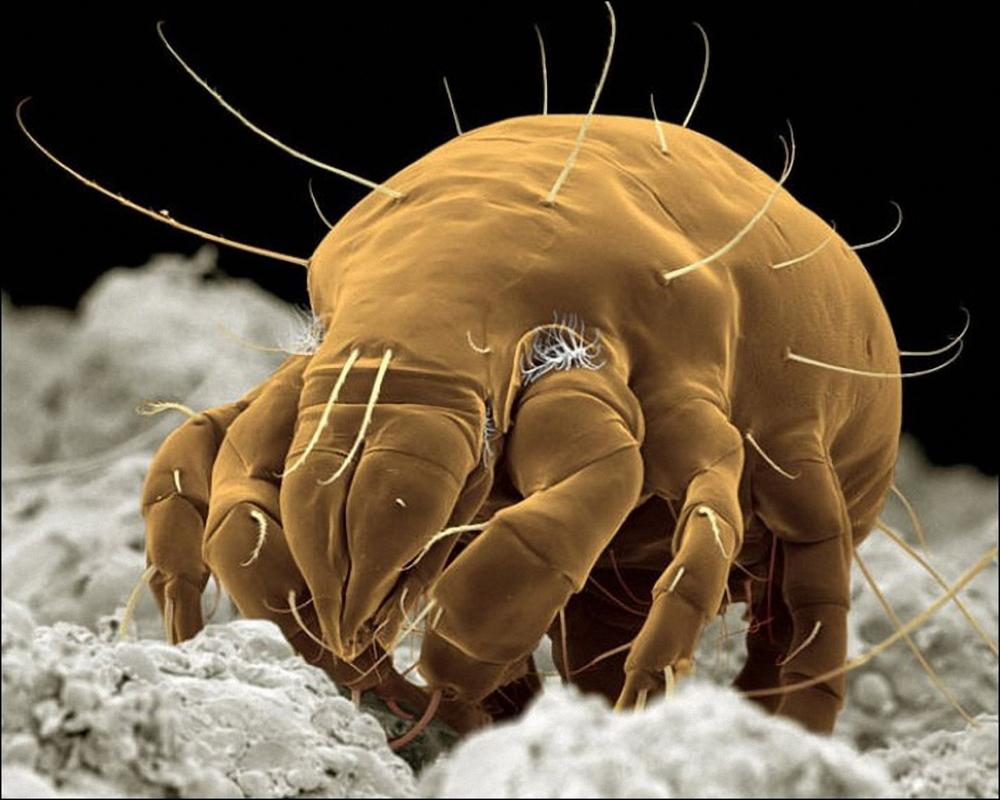 что за паразиты живут в человеке симптомы