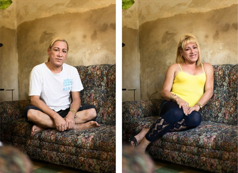 Фото до и после транссексуалы