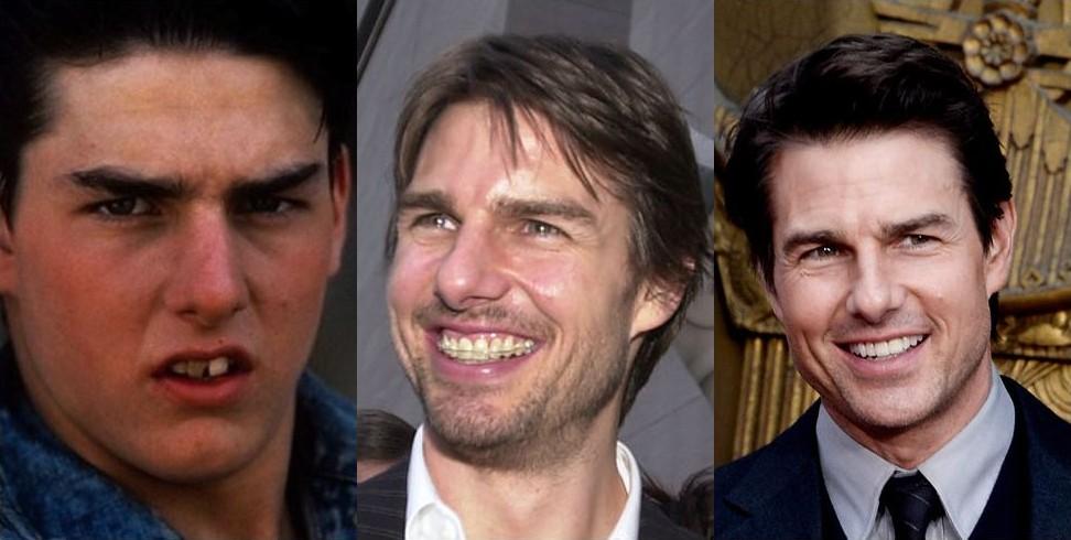 виниры меняют улыбку фото до и после