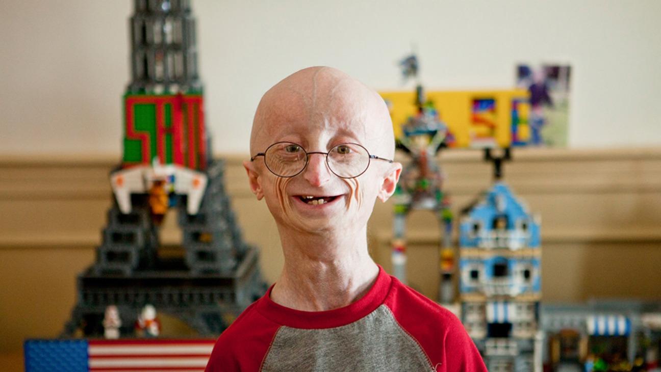 Прогерия (Progeria), синдром Гетчинсона — Гилфорда