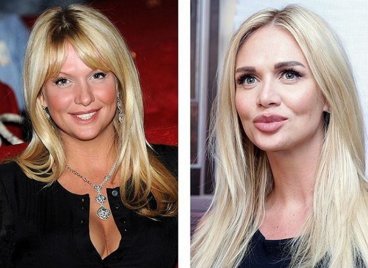 10 Russian beauties before and after plastic surgery