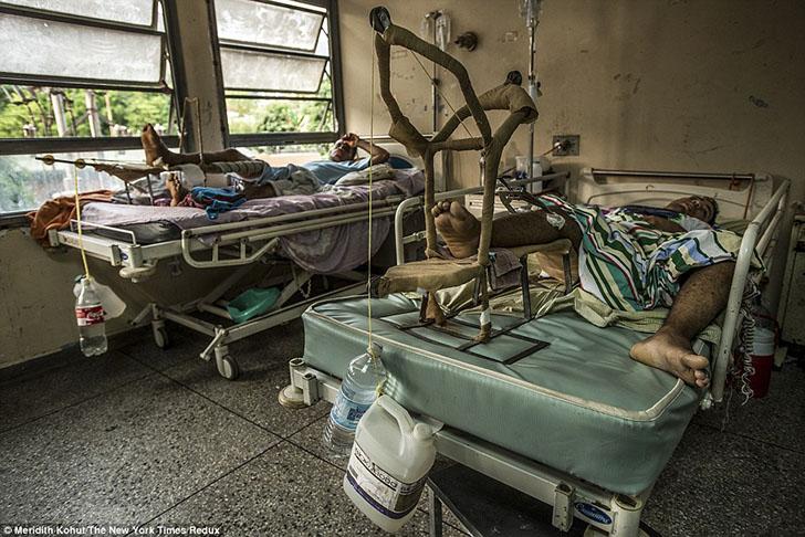 Кошмарные условия в больницах Венесуэлы