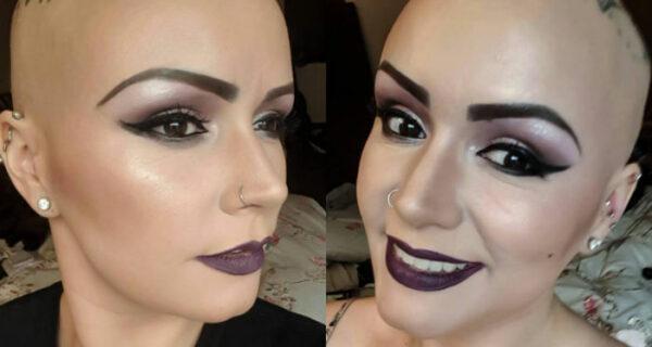 Многодетная мама, потерявшая все волосы из-за болезни, выиграла конкурс красоты