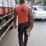 Индийца выгнали из дома и назвали порождением дьявола из-за уродства руки