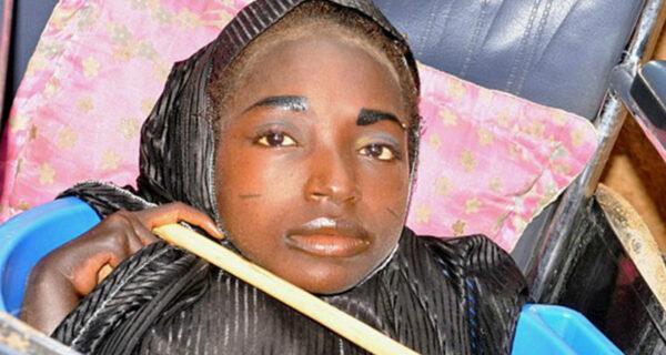 Девушка из тазика: история нигерийки с головой взрослой женщины и телом младенца