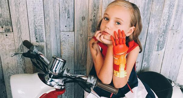 Протезы — это красиво: фотосессия детей с искусственными кистями рук