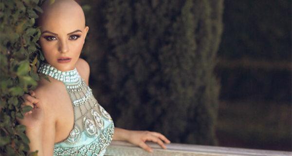 Борющаяся с раком 17-летняя девушка снялась в смелой фотосессии без парика