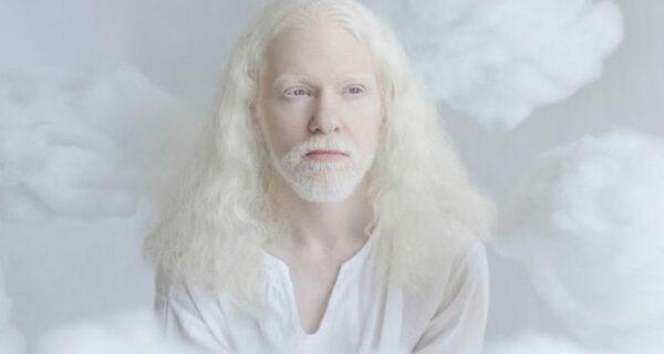 Гипнотическая красота альбиносов в фотопроекте ЮлииТайц