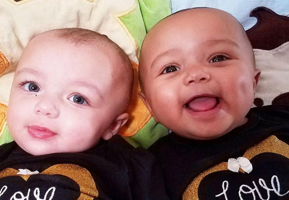 Один белый, другой — загорелый: редкий случай рождения близнецов с разным цветом кожи