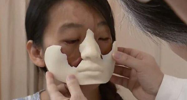 Китаянке с деформированным лицом врачи выращивают новое лицо нагруди