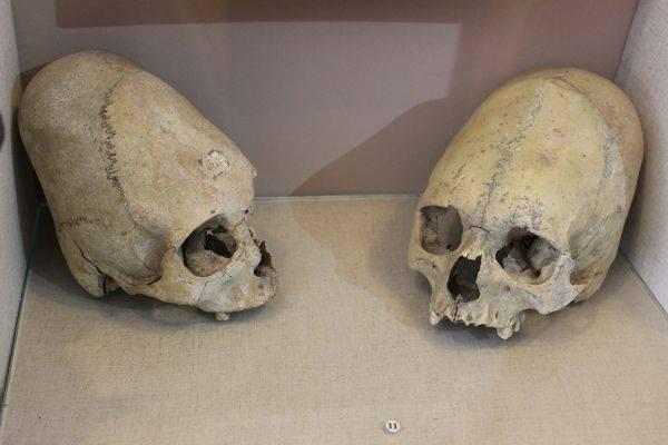 790 - В Крыму нашли скелет младенца II века с вытянутым черепом
