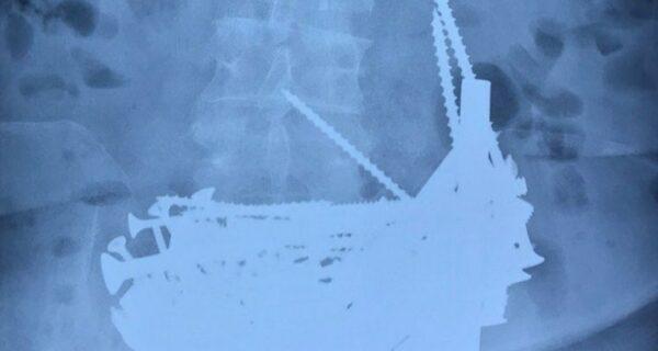 Из желудка бурятской пенсионерки удалили 150 гвоздей, шурупов и дверных шпингалетов