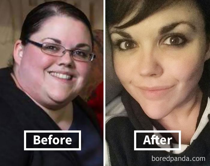 Сильно Похудели Щеки. 7 простых способов похудеть в лице