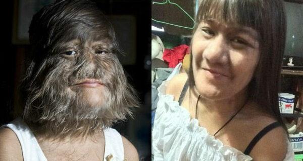 «Самая волосатая девушка в мире» вышла замуж и начала бритьлицо