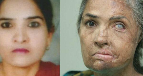 Британский хирург бесплатно проводит трансплантацию бровей жертвам кислотных атак