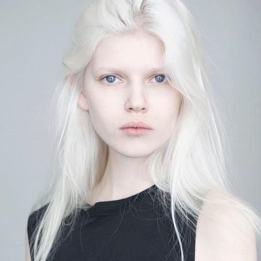 модели альбиносы фото