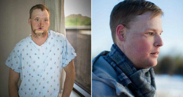 Неудавшемуся самоубийце пересадили лицо, и у него началась новаяжизнь