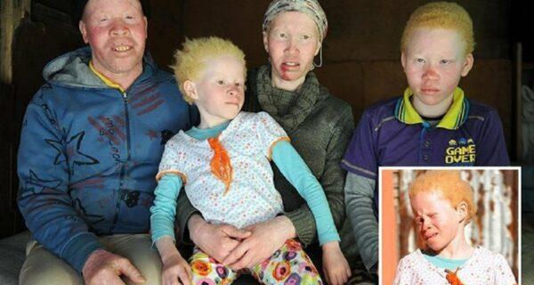 Африканские альбиносы не скрывают своих страхов