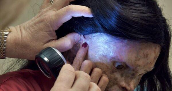 Обреченная на заточение: как живет женщина с аллергией насвет