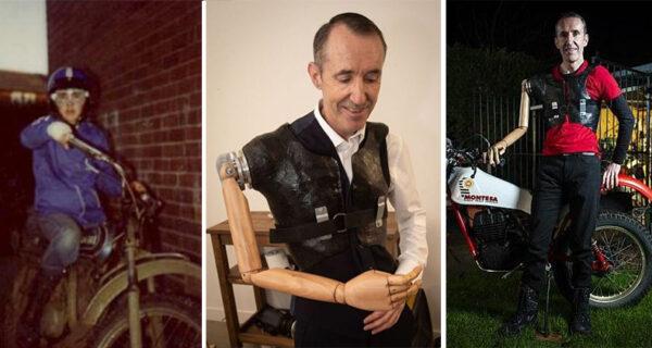 Байкер с деревянной рукой от манекена заново учится водить мотоцикл
