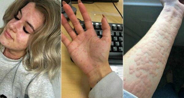 «Я боюсь открывать холодильник»: как живет девушка с аллергией нахолод