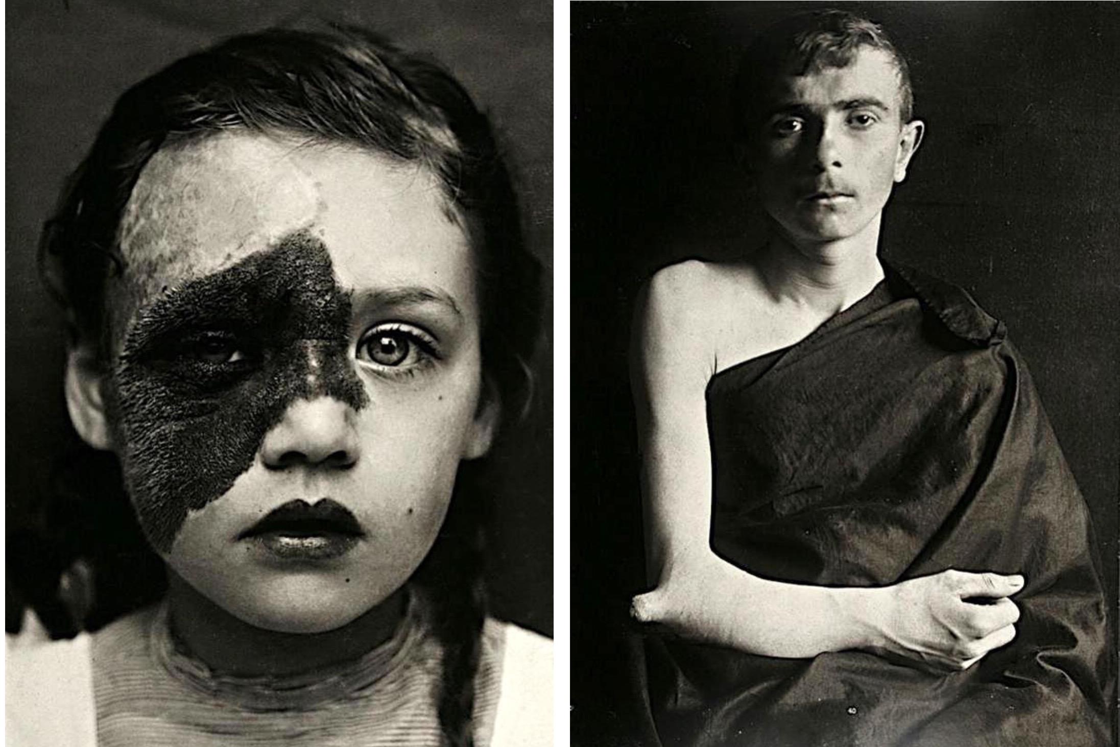 Портреты боли: поразительные фотографии пациентов из XIX века, страдающих от тяжких болезней фото