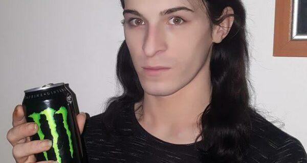 Энергетик, разрушивший зубы и жизнь: 21-летний парень потерял улыбку и мечты, регулярно употребляя бодрящий напиток