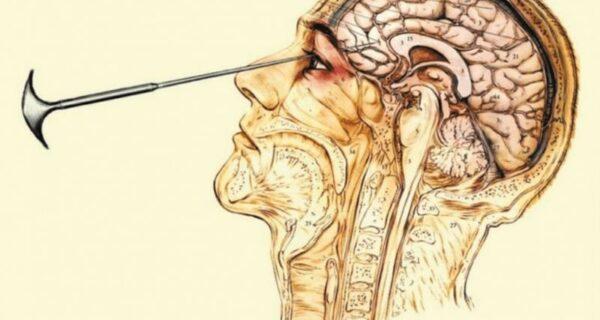 Страшное «лекарство» от склочности и нимфомании: Топ-10 пугающих фактов про лоботомию